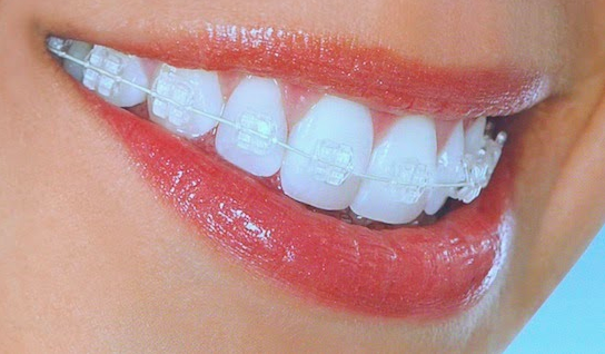 clarity-clear-brackets-mouth closeup
