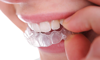invisalign-removable-braces